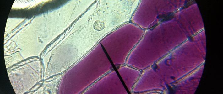 Mikroskopie – Rote Küchenzwiebel